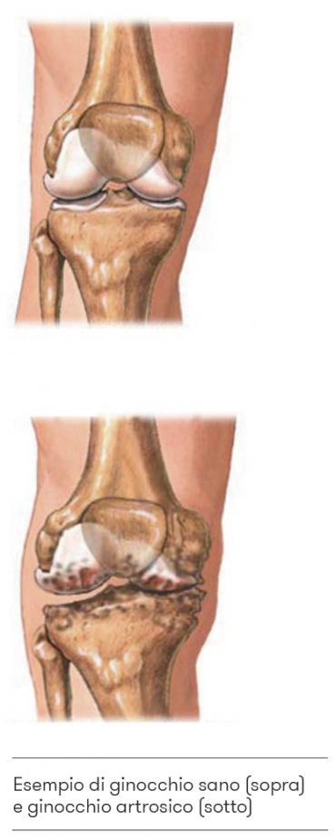 ginocchio sano e ginocchio artrosico